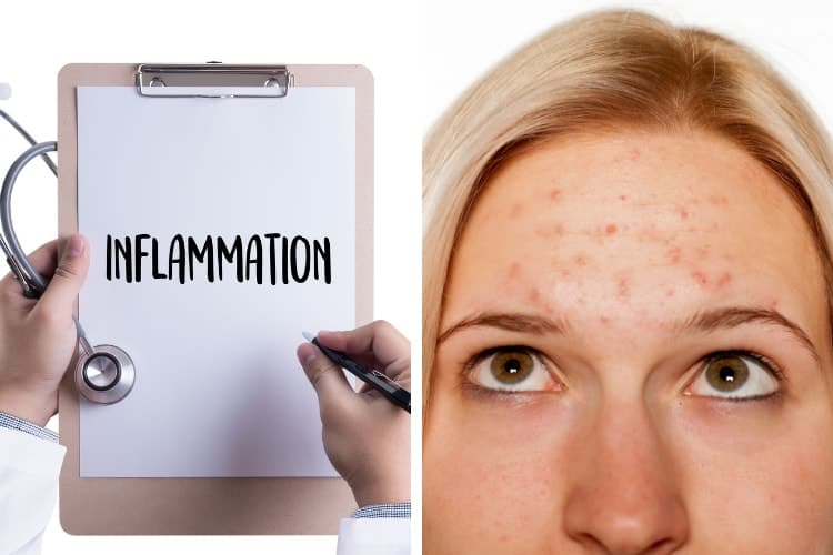 does inflammation in the body cause acne