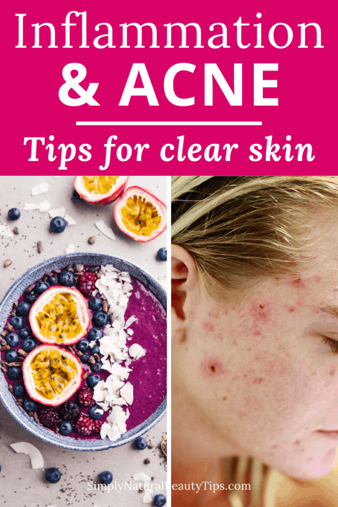 does inflammation in the body cause acne - pin with healthy smoothie bowl and woman with pimples