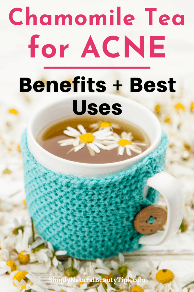 is chamomile tea good for acne - pin