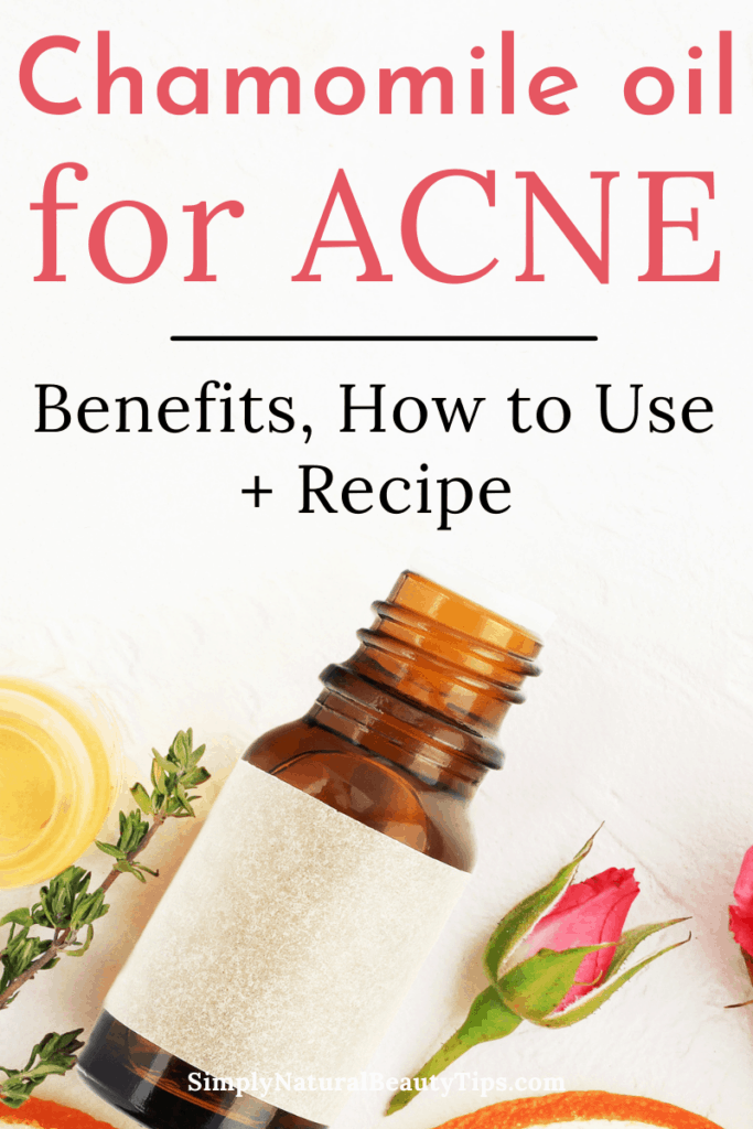 is chamomile oil good for acne - pin image showing essential oil bottle